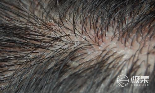 HairMax红光生发仪